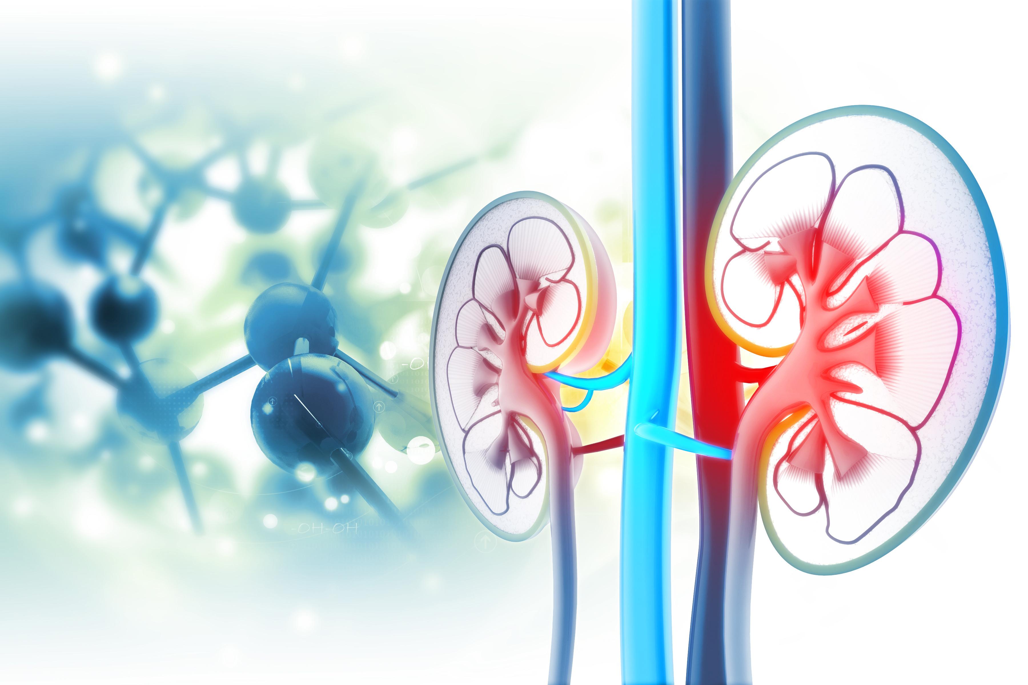 Kidney Disease Causes