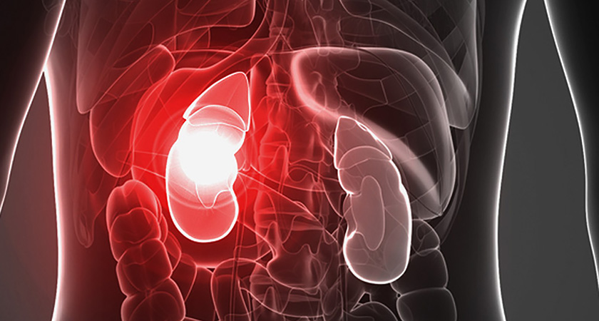 Kidney Failure Esrd Causes Signs And Treatment
