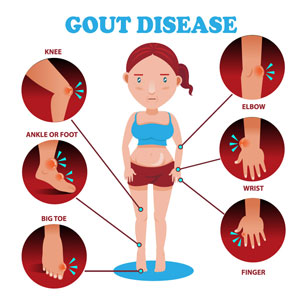 Refractory Gout Signs Symptoms Treatment Diagnosis National Kidney Foundation