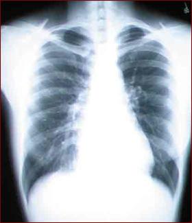 Baking Soda Prevents Kidney Damage From Intravenous Dye National Kidney Foundation