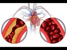 Watch this video to learn about high blood pressure and your kidneys